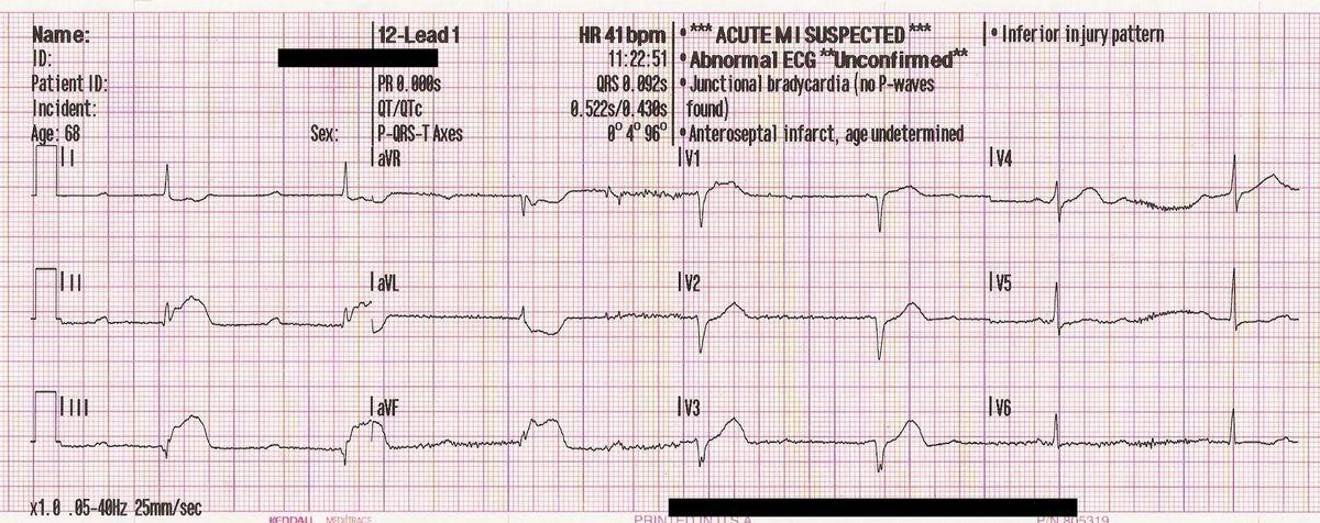 12 Lead St Elevation On EKG