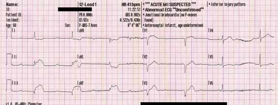 tombstones on ekg. This 12-lead ECG shows acute