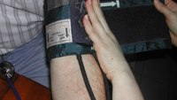 Blood pressure assessment in the hypovolemic shock patient
