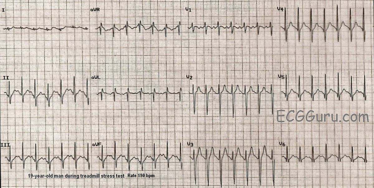 What Is Svt >> Sinus Tach Or Svt 4 Clues To Tell The Difference