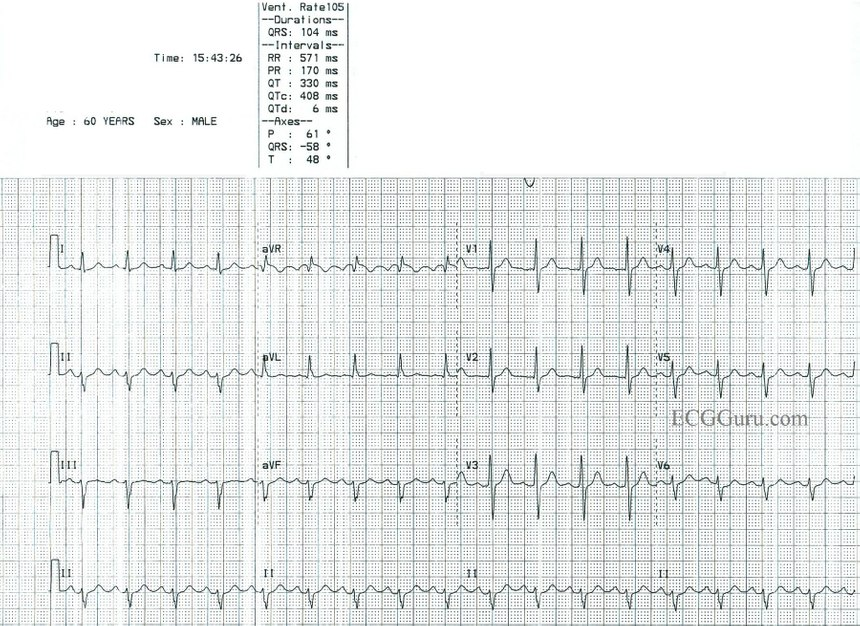 Sinus Tach Or Svt 4 Clues To Tell The Difference