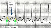 10 tips to never miss atrial flutter with 2:1 conduction