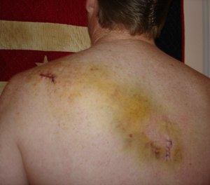 In April 2005, Lt. Phil Murphy was shot while responding to a domestic violence call. (Photo/Miriam Murphy)