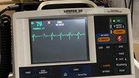 Diagnostic dilemma: Syncope vs. seizure