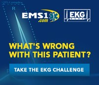EKG case: Man with weakness, chest pain and hyperthermia