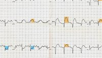 What STEMI patients need paramedics to know