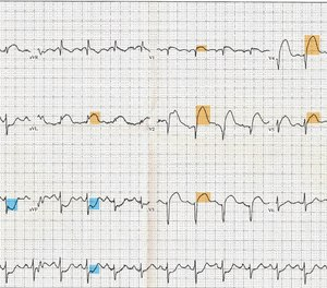Even at the BLS/EMT level, acquiring a 12-lead ECG is becoming a common skill in many states.  So, how can we master this valuable, care-directing and diagnostic-quality skill? Practice, test and reference often.
