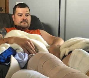 Akron Police Officer Ryan Hughes talks about the crashthat left him and three other officers injured.