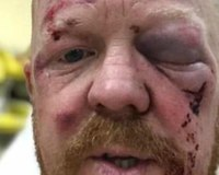 Australian paramedic viciously attacked during charity ride for child cancer