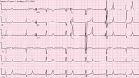 Free Online Course | 12-Lead EKG