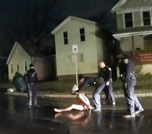 In this image taken from police body camera video, a Rochester police officer puts a spit hood over the head of Daniel Prude on March 23, 2020, in Rochester, N.Y. (Rochester Police via Roth and Roth LLP via AP)