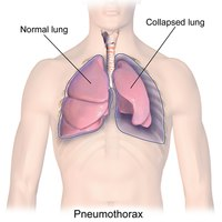 Tension Pneumothorax: Identification and treatment