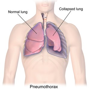 Tension pneumothorax occurs when air is trapped in the pleural cavity. Treatment may include thoracic decompression, often called needle thoracostomy or needle decompression.