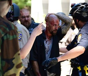 Police escort a wounded man away from in front of the Capitol in Sacramento, Sunday, after members of right-wing extremists groups holding a rally outside the California state Capitol building clashed with counter-protesters. (AP Photo/Steven Styles)
