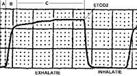 ETCO2: Back to the basics