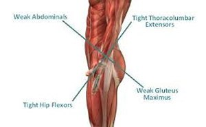 Over time, because we sit too much and because we have done improper exercises like crunches and leg raises, our hip flexors become tight. As they become tight, they pull the pelvis forward and as the pelvis is pulled forward some interesting things happen.