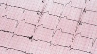 Should we delay EKG post-ROSC? The PEACE study