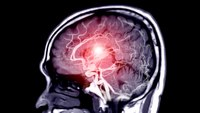 Study: Improved treatment for stroke patients after EMS transport policy change