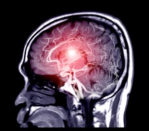 The results of the study, published in JAMA Neurology this week, found that stroke patients were more likely to receive endovascular therapy at comprehensive stroke centers in comparison to the nearest stroke center to the patient.