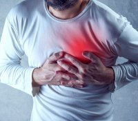 Serial killers: Acute chest pain