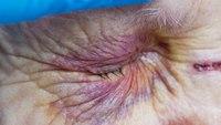 Article Bites: Trauma triage of older adults: Anticoagulants matter