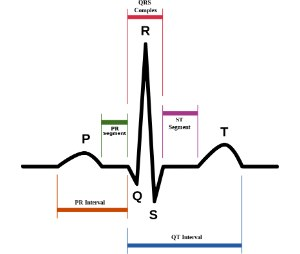 Schematic representation of normal sinus rhythm showing standard waves, segments, and intervals. (Image by Anthony Atkielski)
