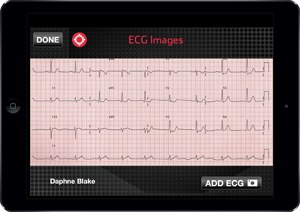 An ECG displayed on a tablet using Pulsara's software