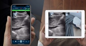 Clarius Live was unveiled at the annual American Institute of Ultrasound Medicine (AIUM), where it was demonstrated as fully integrated into the current version of the app with a single tap that prompts the user to enter an email or phone number for a live connection.