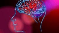 Thinking PHAST for stroke assessment