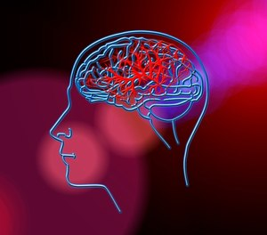 Times are changing, andso is the way that we assess for a stroke. (Photo/Pixabay)
