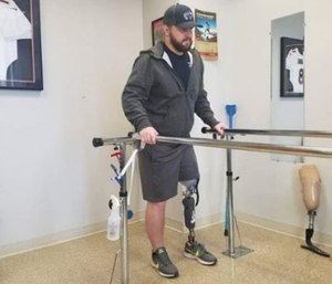 """""""I'd like to be the first firefighter in Colorado to have an above-the-knee amputation,"""" Macdonald said. (Courtesy photo)"""