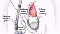 The arresting LVAD patient: A review of the updated recommendations
