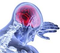 When a stroke is not a stroke: A case study