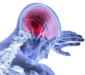 Some patient present with stroke-like signs and symptoms that are unrelated to a stroke. (Photo/Pixabay)