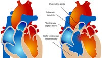 Prehospital recognition and care of neonatal congenital heart defects