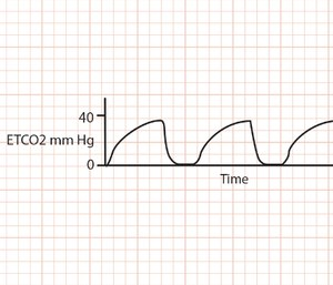 Bronchoconstriction causes uneven expiration from the alveoli, which makes the capnography waveform appear similar to a shark fin.