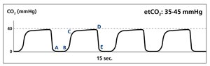 A typical capnography waveform.