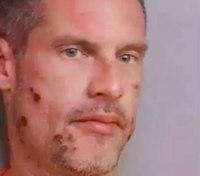 Audio: Man calls 911 to report himself drunk driving