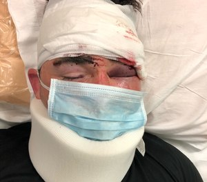 San Diego Deputy Michael Cascioppo is seen recovering from an inmate attack.