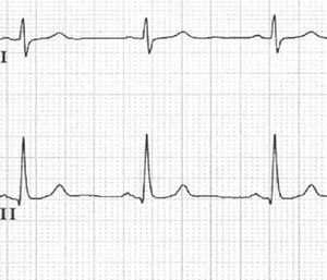 While there are some advantages to obtaining a 12-lead ECG, there are also some limitations. (Courtesy photo)