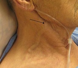 A person with congestive heart failure who presented with an exceedingly elevated jugular venous distension – the arrow is pointing to the external jugular vein, however, JVD is measured by the internal jugular vein which can also be seen here