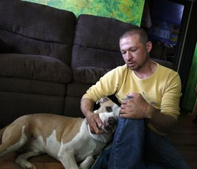 In this May 1, 2014 photo, Wayne Winkler, who suffered burns to 12 percent of his body when butane fumes ignited while he was making hash oil at home, pets his dog Bailey, in his living room, in Denver. (AP Image)