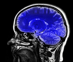 Blast shockwaves can create a a sharp increase in pressure that moves through the brain, damaging brain cells, compromising blood vessels and causing brain inflammation.