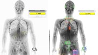 Getting the most from your body scanner