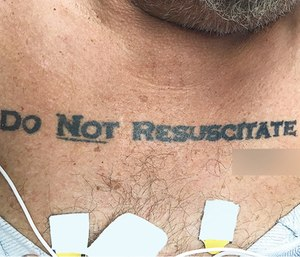 An unconscious man with a 'Do Not Resuscitate' tattoo across his chest was recently admitted to a Florida hospital. (Photo/NEJM)