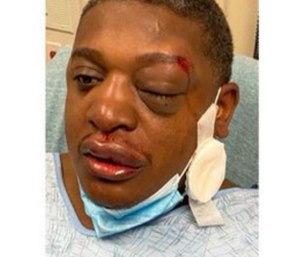 The officer was left with several contusions and bruising to his face and head. (Photo courtesy of New Jersey State Policeman's Benevolent Association)