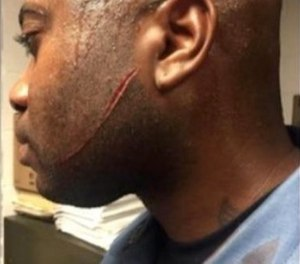 A New Jersey State Prison inmate slashed a corrections officer across the face, but that injury will probably not qualify the officer for paid leave. (Photo/NJSPBA)