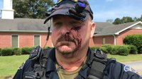 Police chief stabbed in face after answering his door, cops say