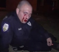 Police: NC cop hospitalized after he's beaten during arrest