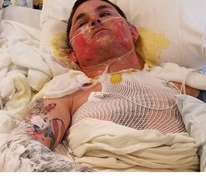 Damon Spring (pictured) and Bart Negro remain hospitalized after suffering severe burns while battling the Sheep Creek fire. (Photo/GoFundMe)